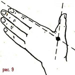 9-golovnaya-bol-migren